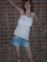 anoreksia_32.jpg